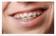 Braces or Brackets 1
