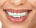 Smile Design 2