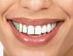Smile Design 4