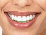 Smile Design 5
