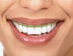Smile Design 6
