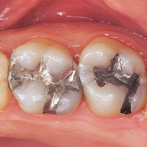 TOOTH COLOUR FILLING 2