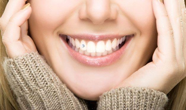 Dental Jewellery 2