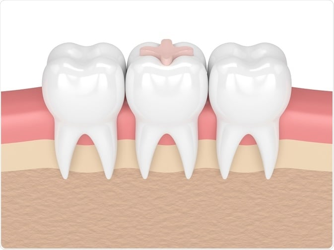 TOOTH COLOUR FILLING 3